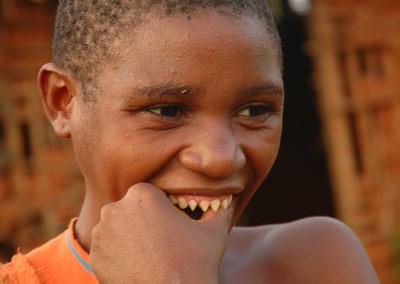 Teeth – Pygmees